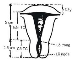 Tử cung, cấu tạo bộ phận sinh dục nữ