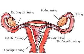 Tắc vòi trứng gây vô sinh ở nữ